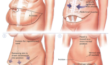 The popularity of cosmetic surgery and abdominoplasty